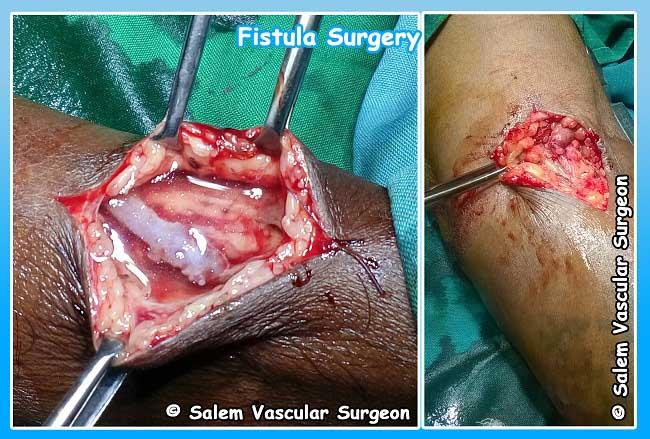 Anal fistula surgery recovery time
